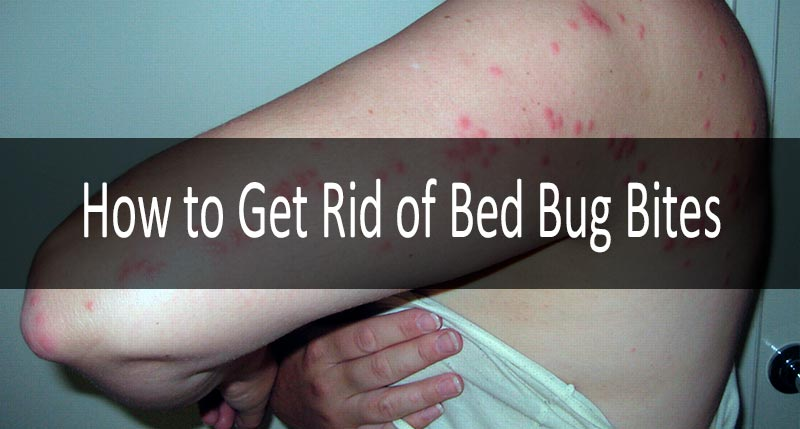 Bed Bug Bites 8 Definite Symptoms Signs Treatment Strategy